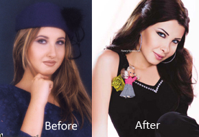 Nancy Ajram: Before & After